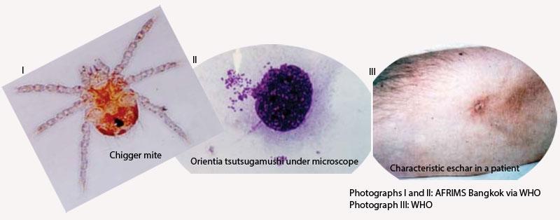 Scrub typhus claims nine in six months: EDCD report